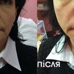 Корекція носогубних складок у Вінниці