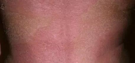 Псоріатична еритродермія