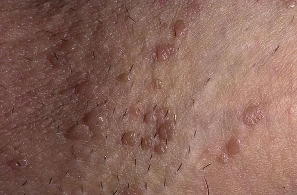 какие вирусы вызывают плоские кондиломы